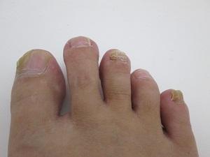 爪水虫、爪白癬