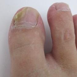 足の親指が爪水虫